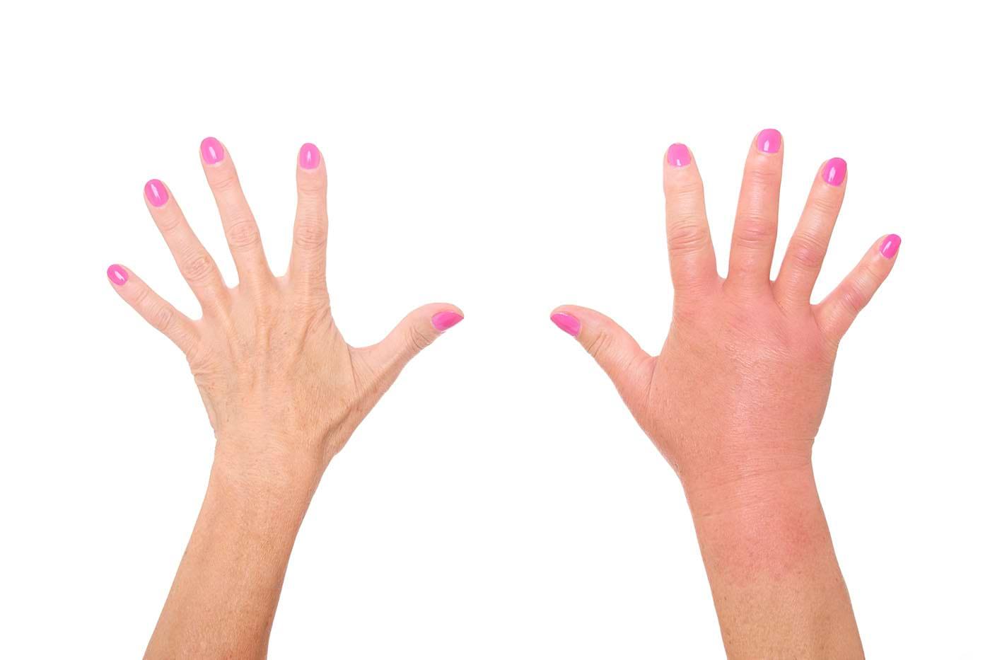 modalități de a vă slăbi degetele