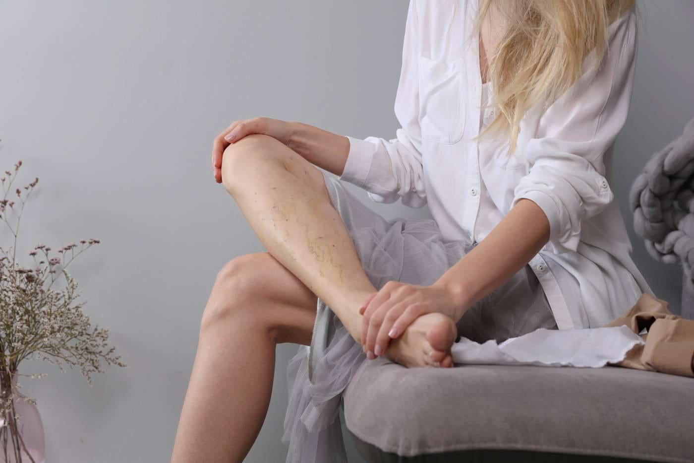 Varicoză picior doare după operație, Varicoză pe picioarele fetelor cauzează