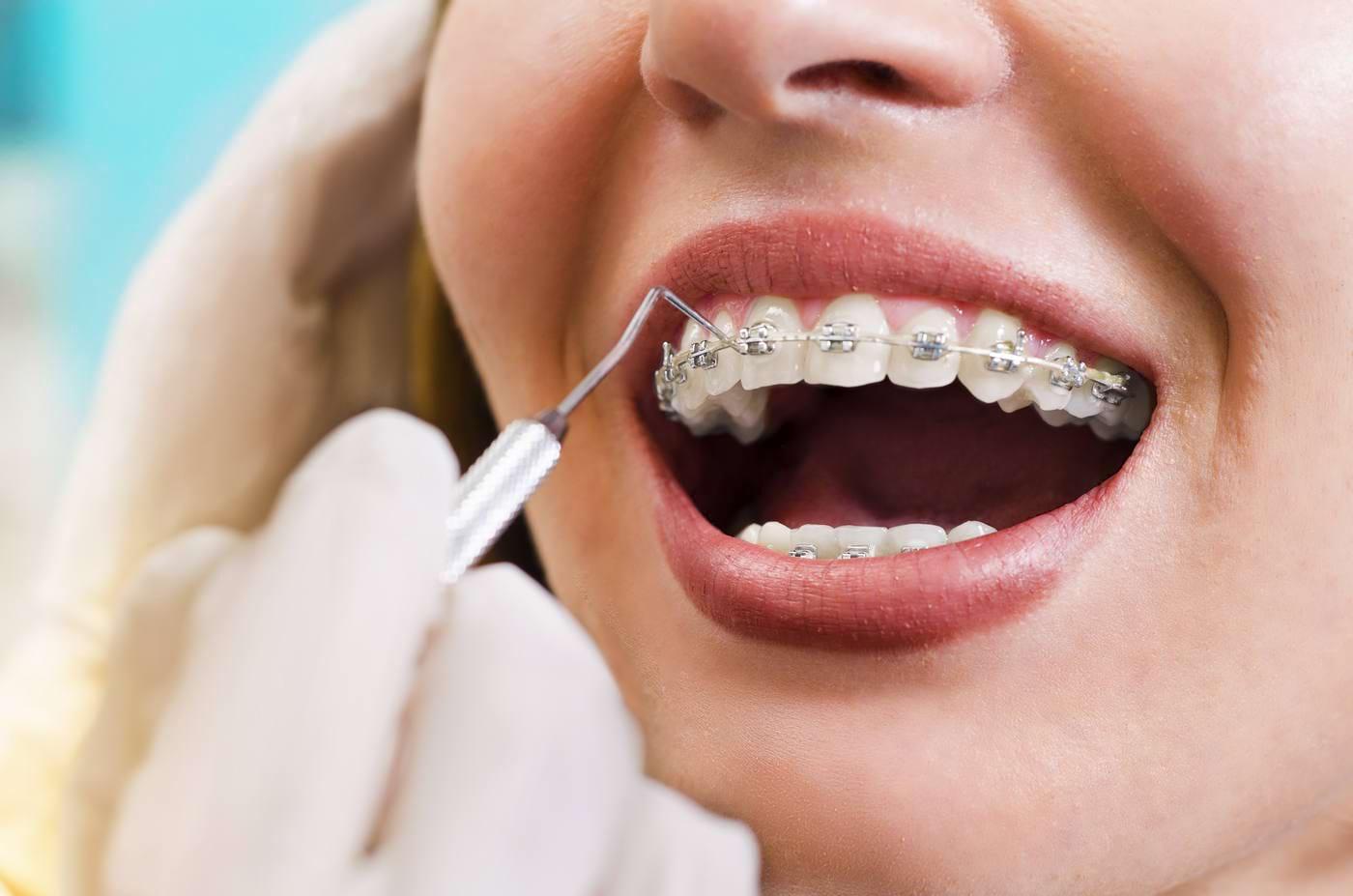 Totul despre aparatul dentar la copii și adulți