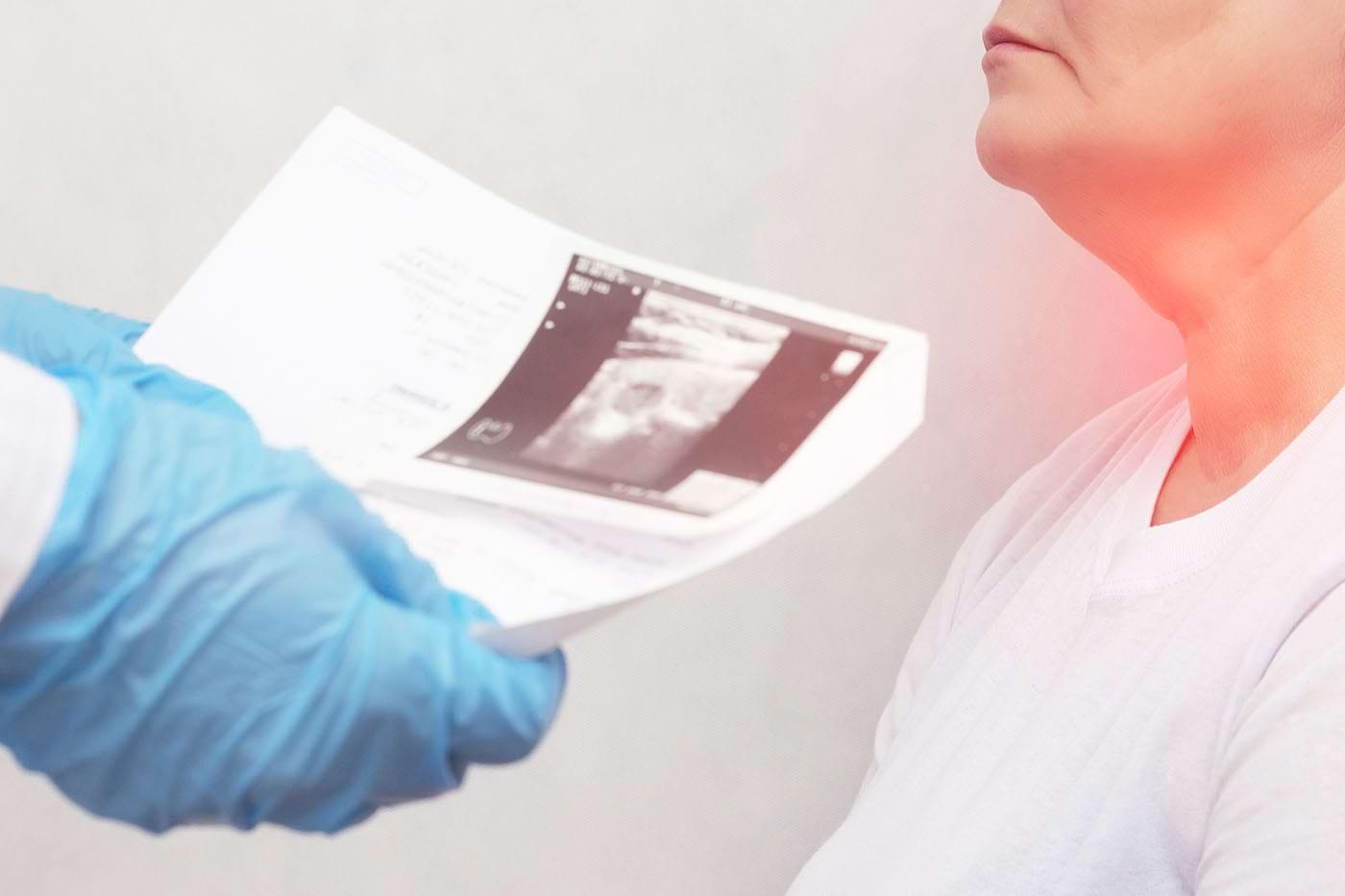 Numărul cazurilor de cancer tiroidian a crescut la nivel mondial [studiu]