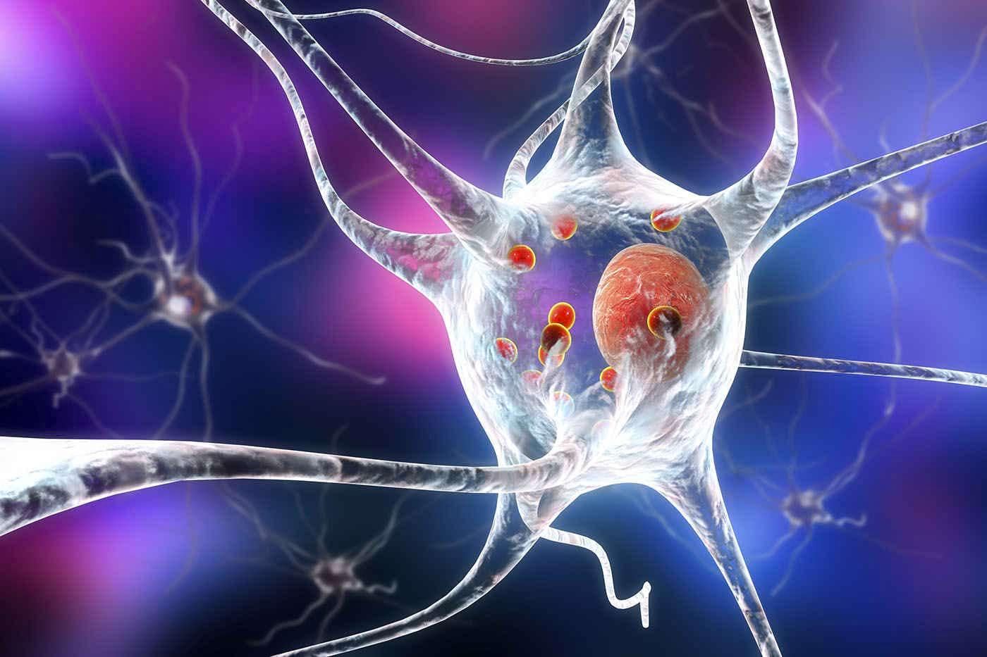 Un tratament nou pentru Parkinson ar putea elimina simptomele bolii [studiu]