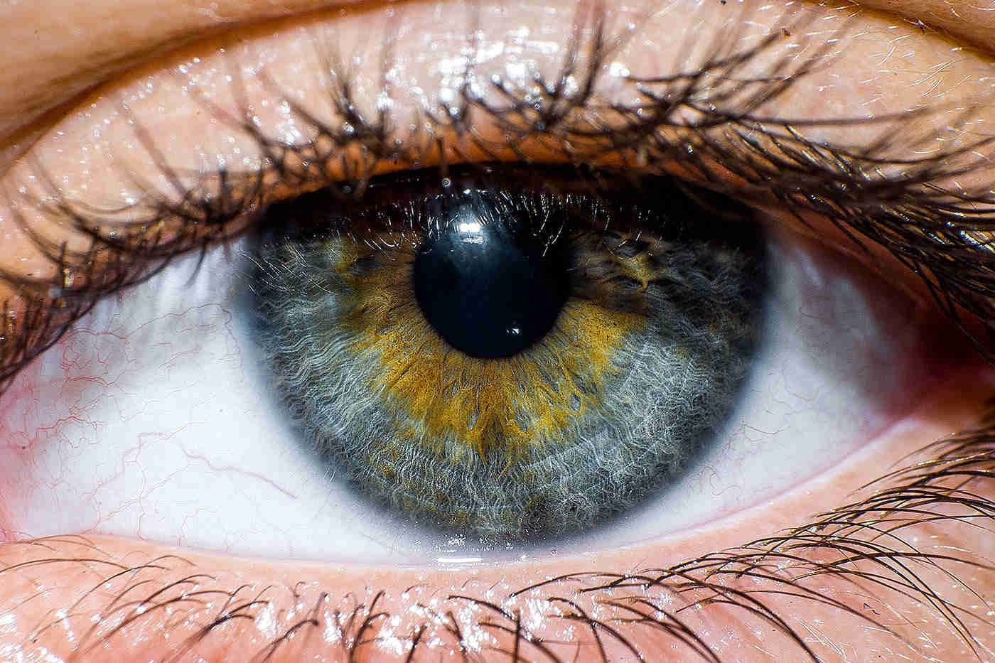 Transplantul de cornee: când este recomandat și ce presupune
