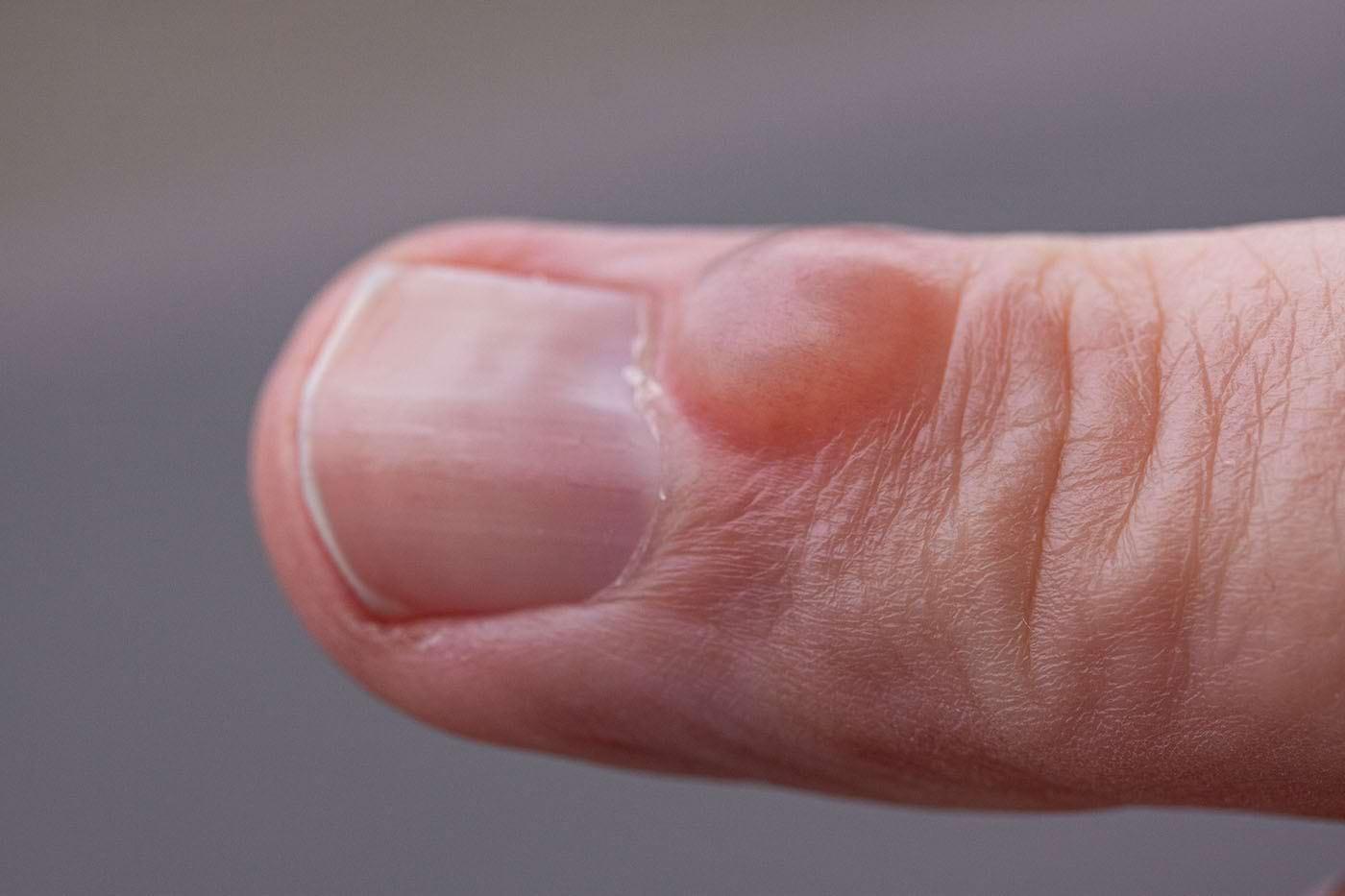 recuperare chist sinovial articulațiile degetelor artrita reumatoidă