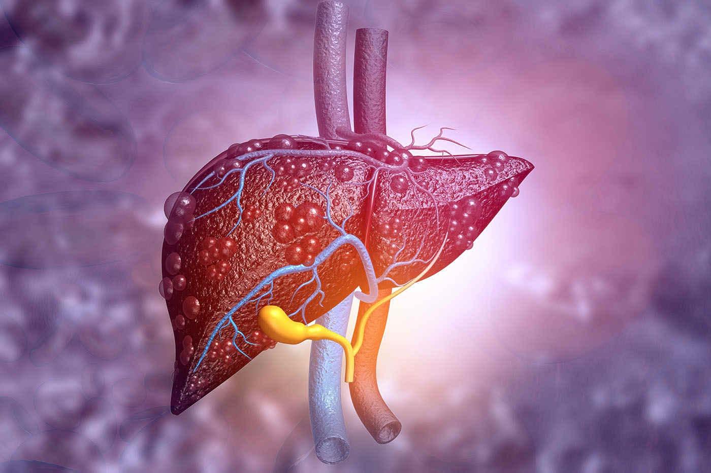 Un dezechilibru al electronilor în ficat, asociat cu apariția ficatului gras? [studiu]