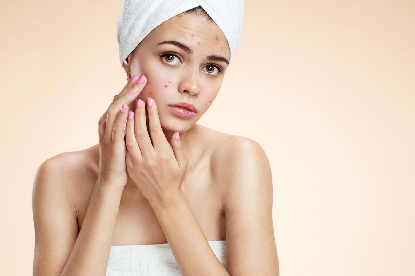 Este util zincul în tratamentul acneei?