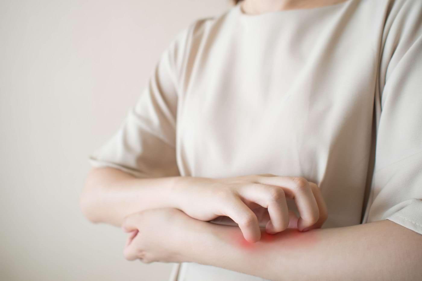 COVID-19: Recomandări pentru pacienții cu afecțiuni dermatologice