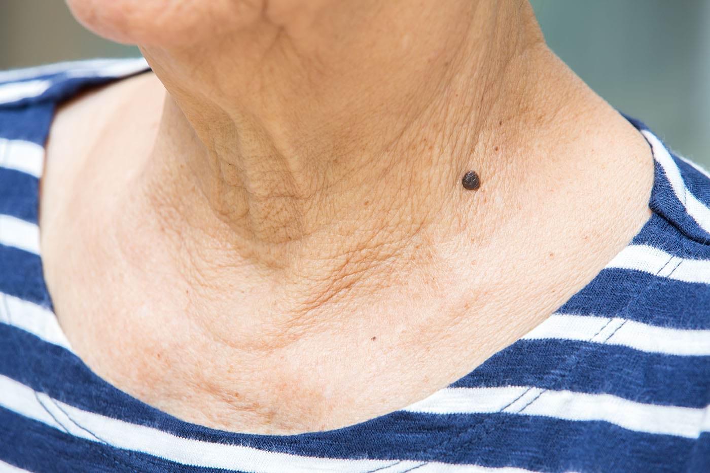 Nevusul albastru: cauze, simptome, tratament