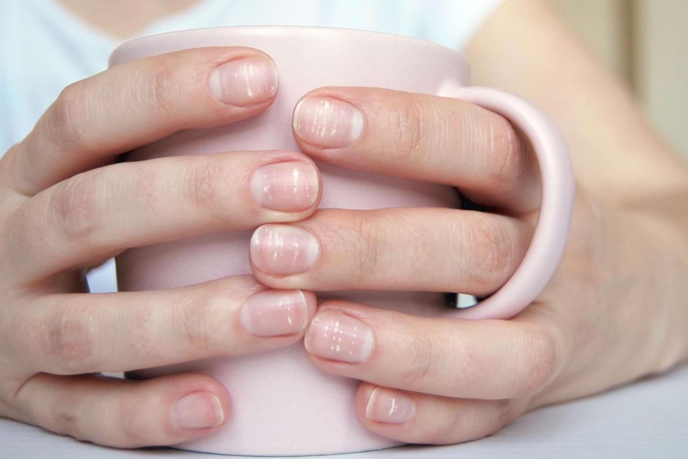 De ce avem pete albe sub unghii?