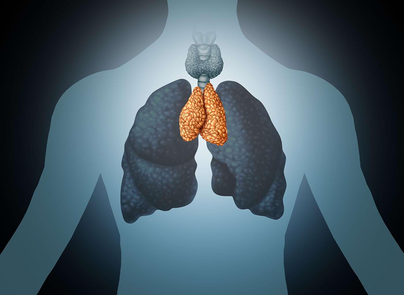 Cartografierea originii sistemului imunitar dă speranțe pentru noi terapii anticanceroase [studiu]