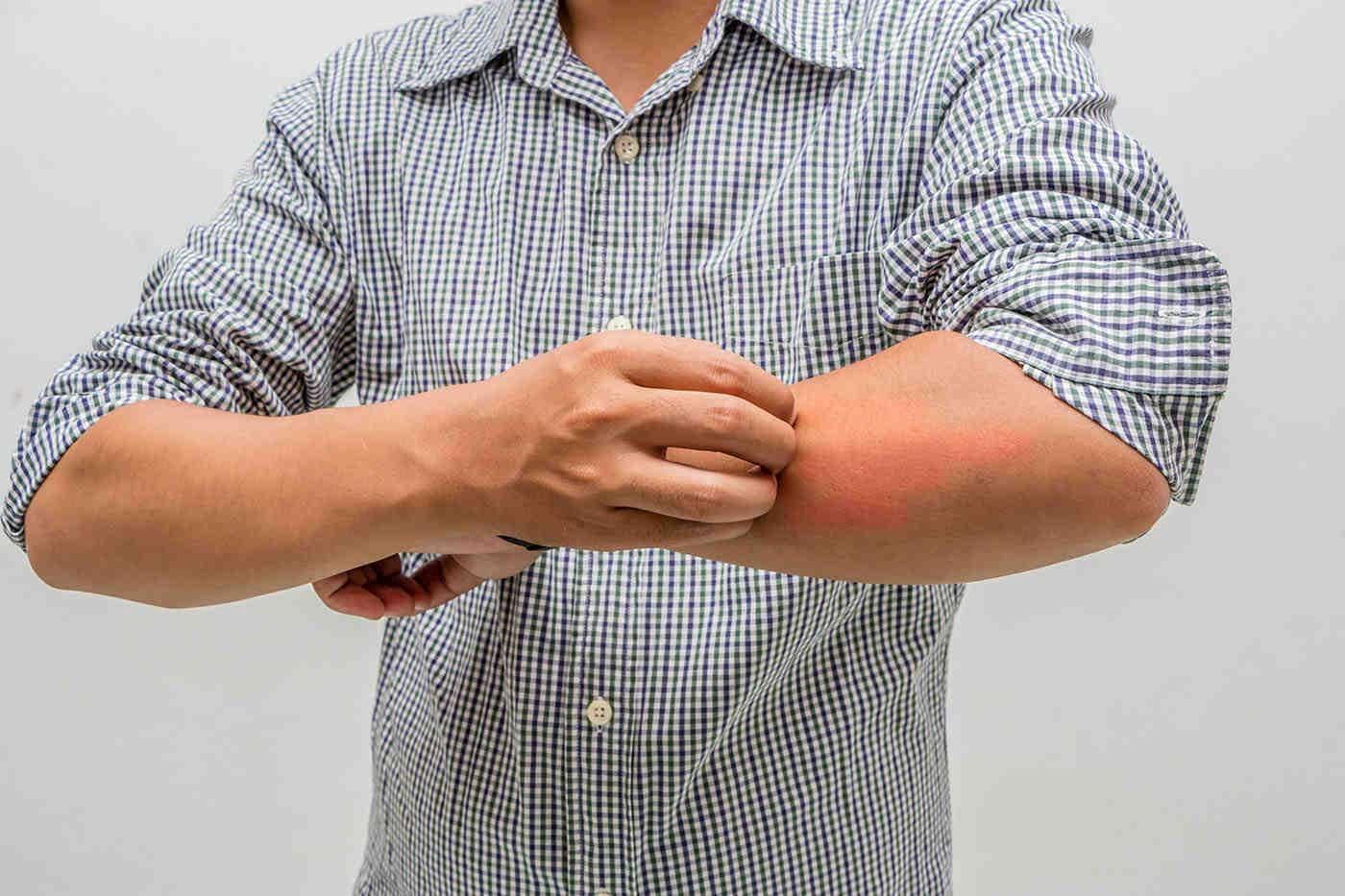 Alergii de toamnă și problemele de piele asociate