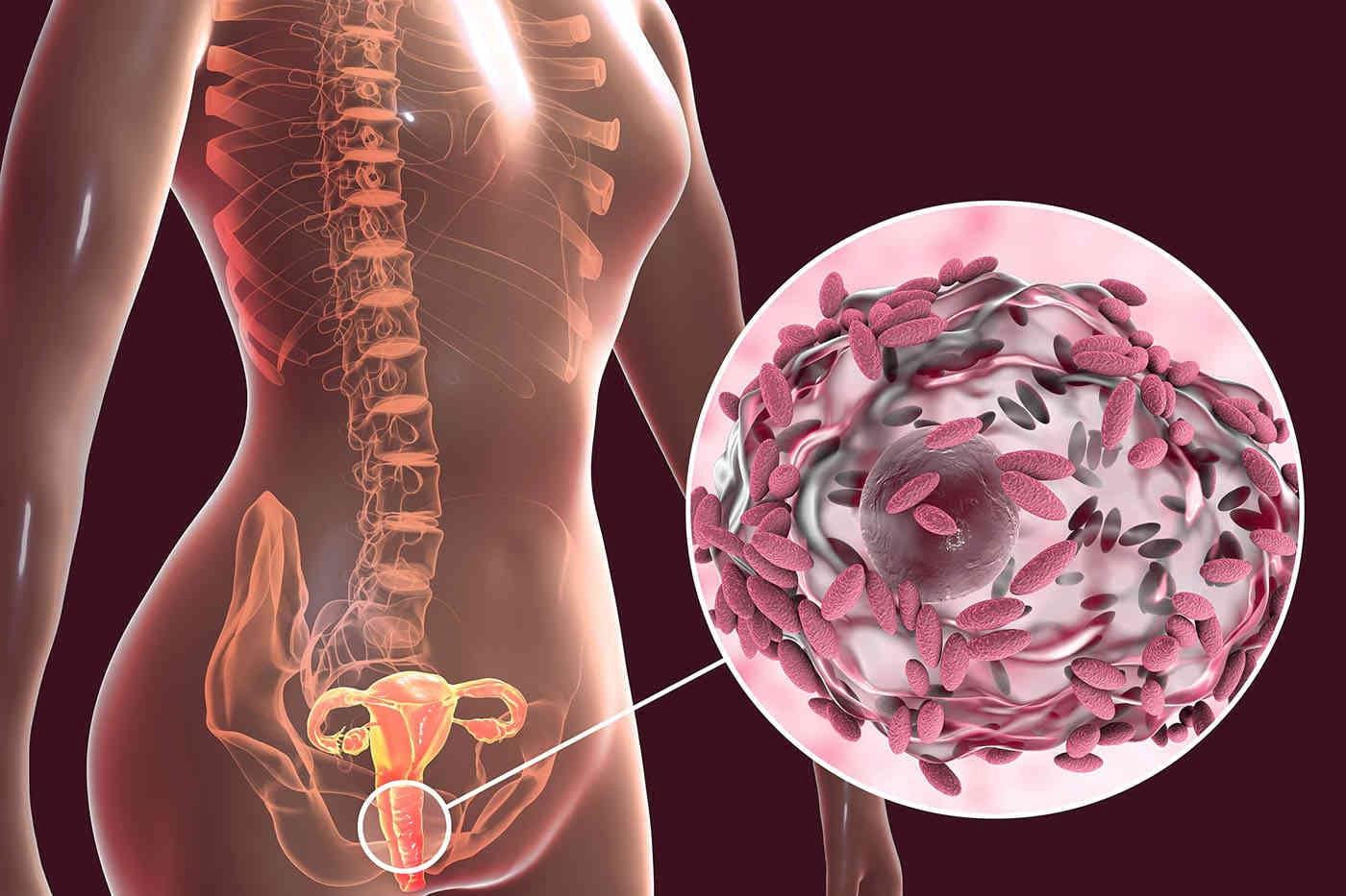 Cum restabilești echilibrul florei vaginale