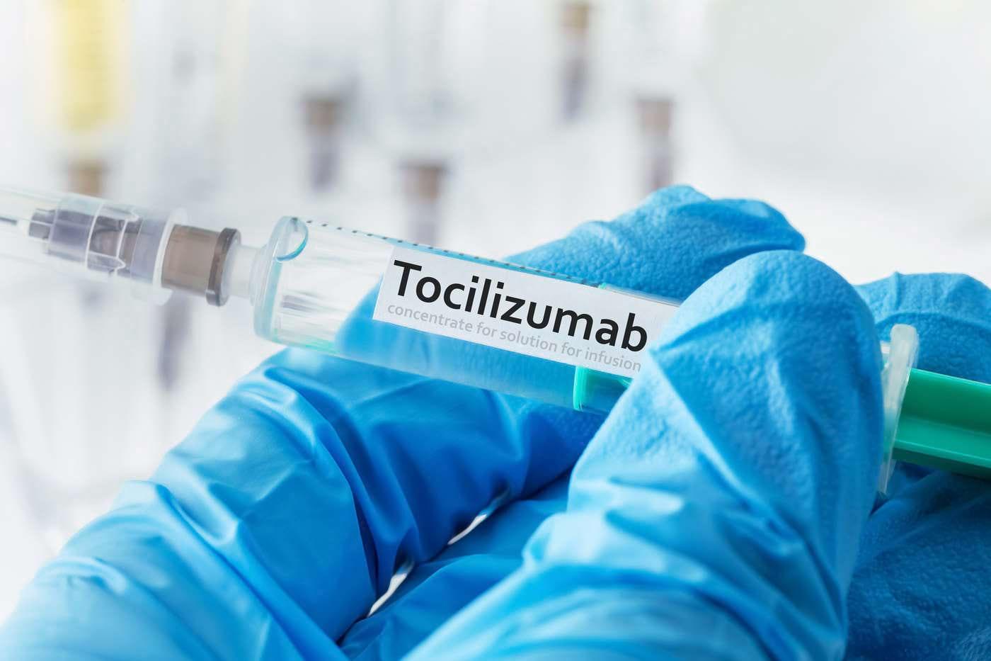 Tratamentul precoce cu tocilizumab ar putea preveni decesul în pneumonia asociată cu COVID-19 [studiu]