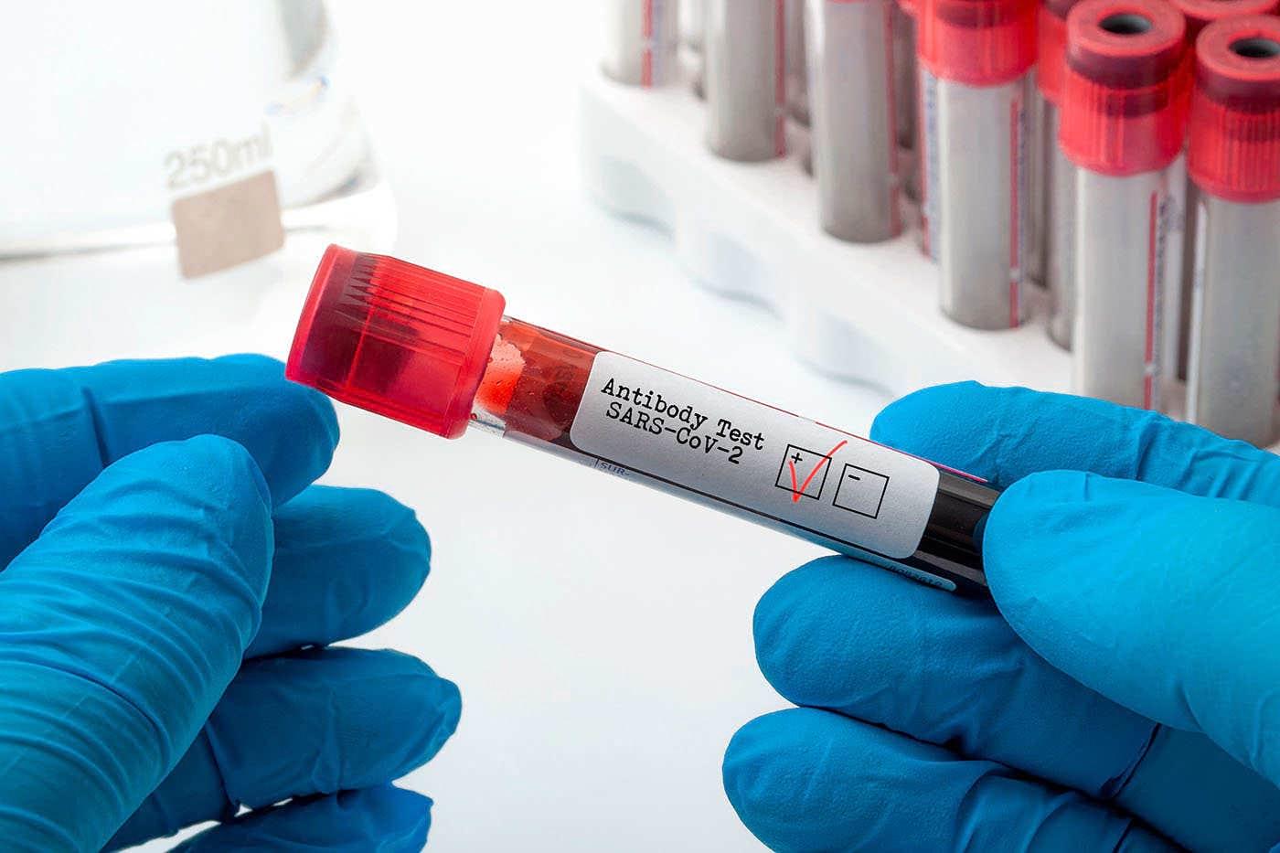 40% dintre locuitorii testați pozitiv într-un oraș german nu mai prezintă anticorpi anti-SARS-CoV-2 [studiu]