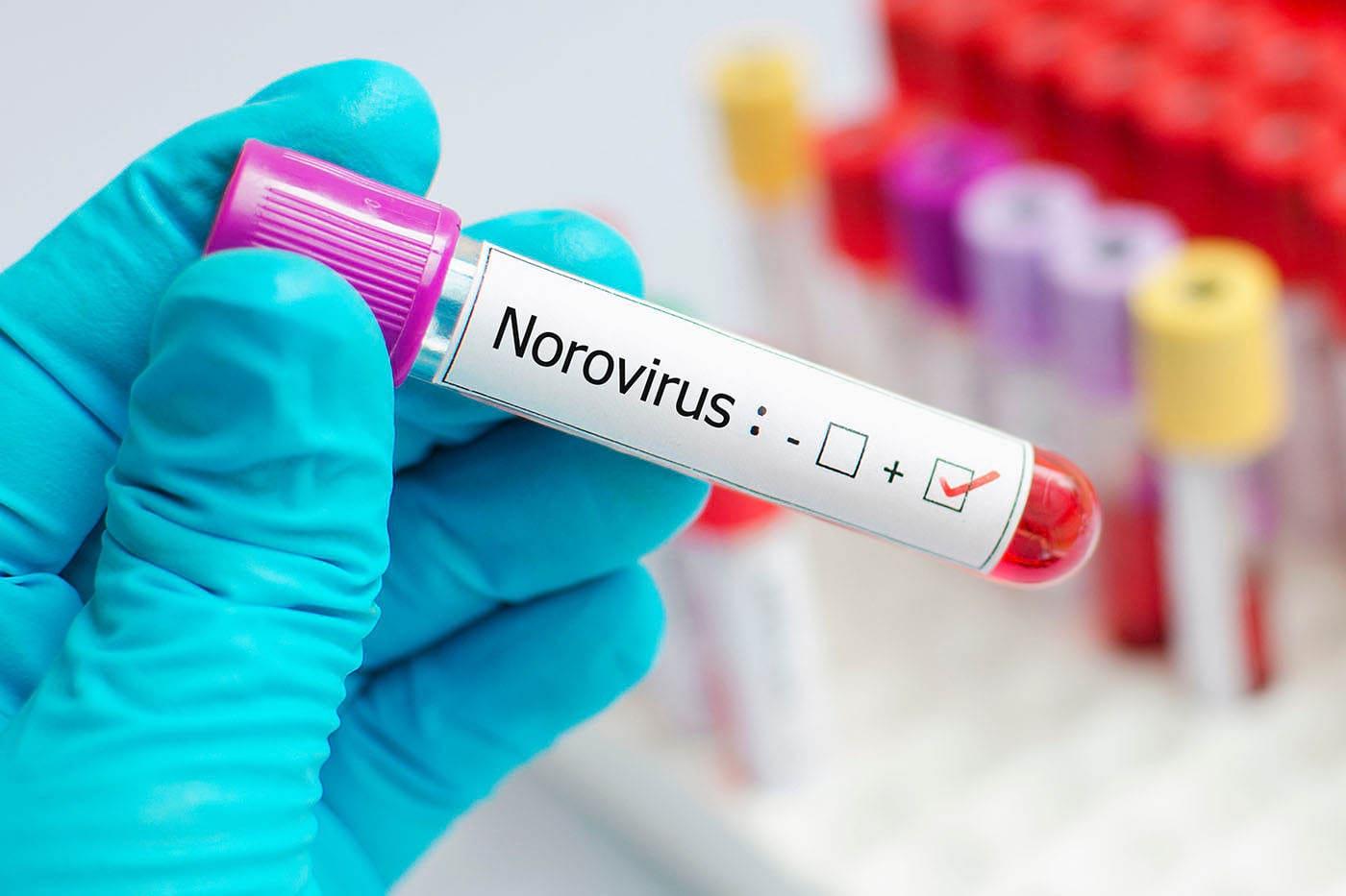 Infecția cu norovirus: simptome, tratament, prevenție