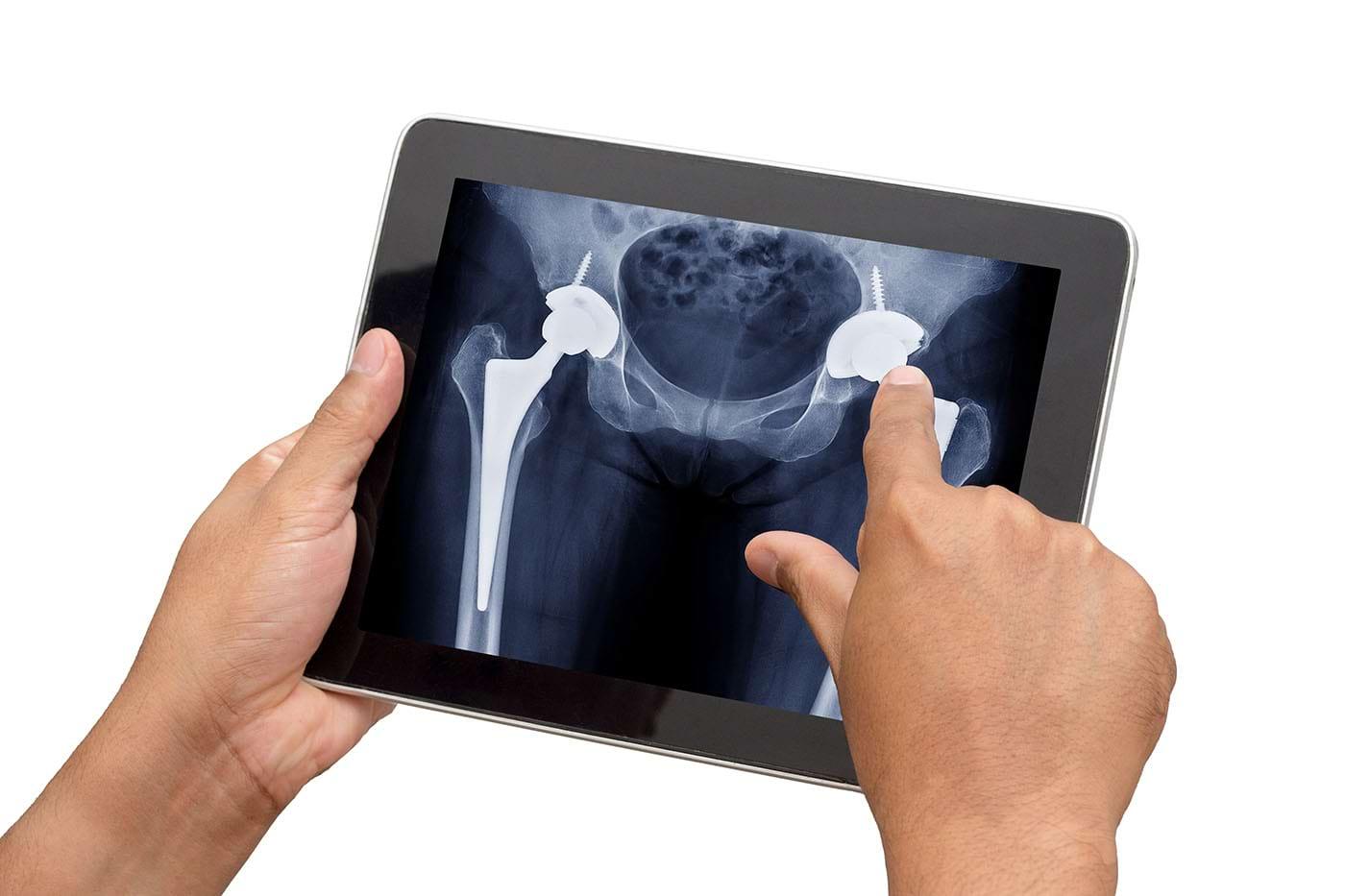 Proteza de șold (artroplastia totală de șold): când se recomandă și în ce constă recuperarea?