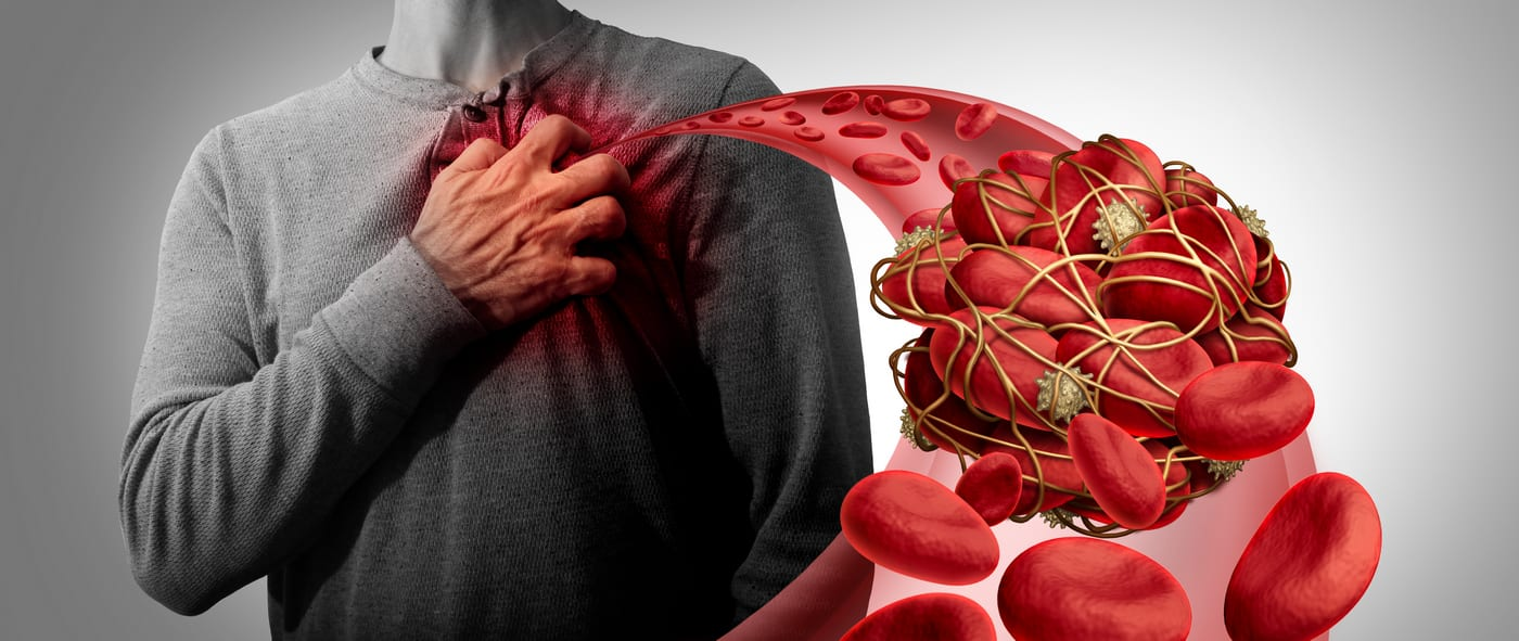 Semnele unui cheag de sange pe care nu trebuie sa le ignori