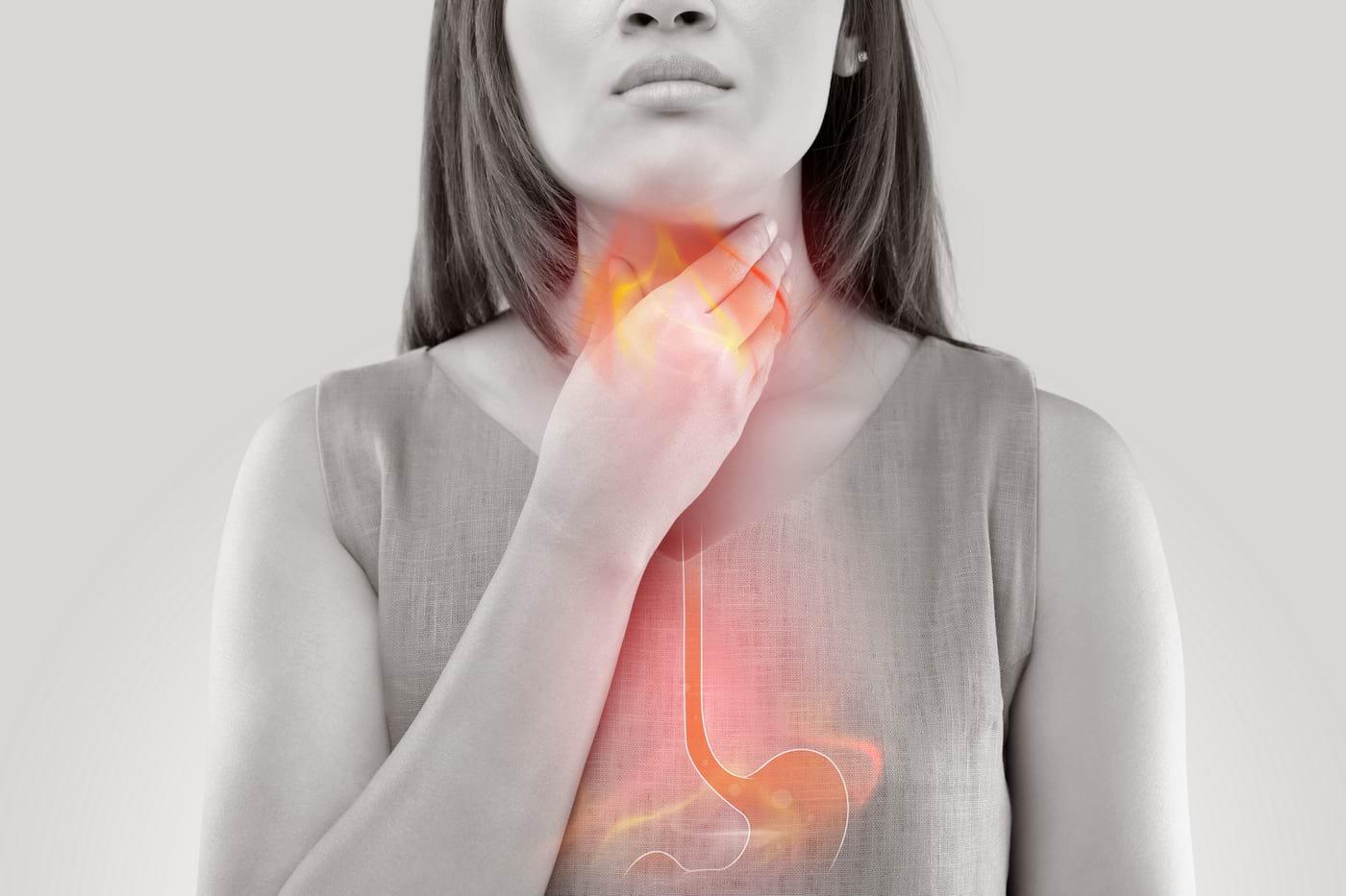 Boala de reflux gastroesofagian (BRGE)