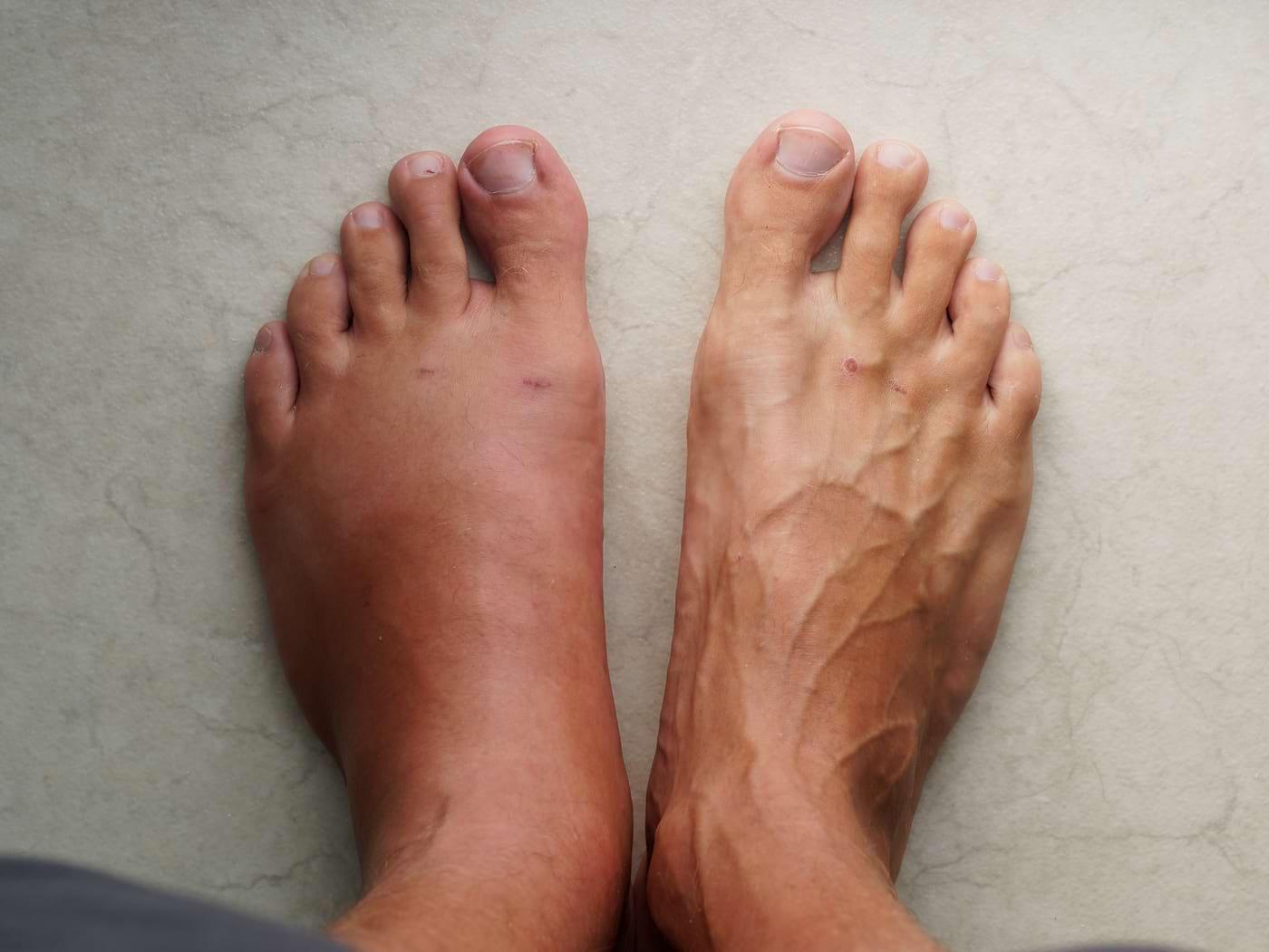 Ce înseamnă când ți se umflă doar un picior?
