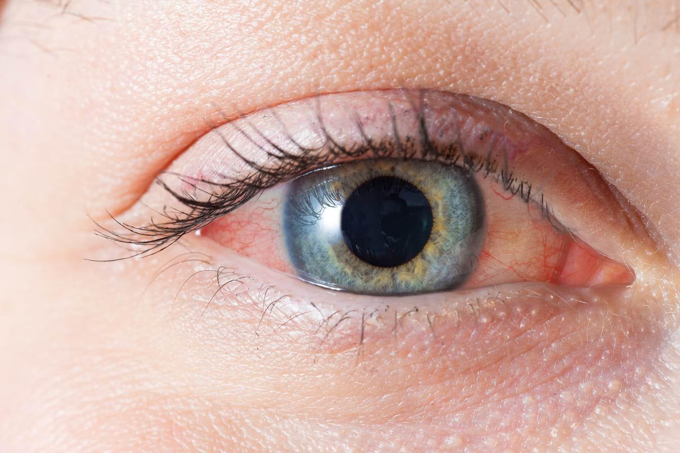 ochii obosesc vederea se agravează)
