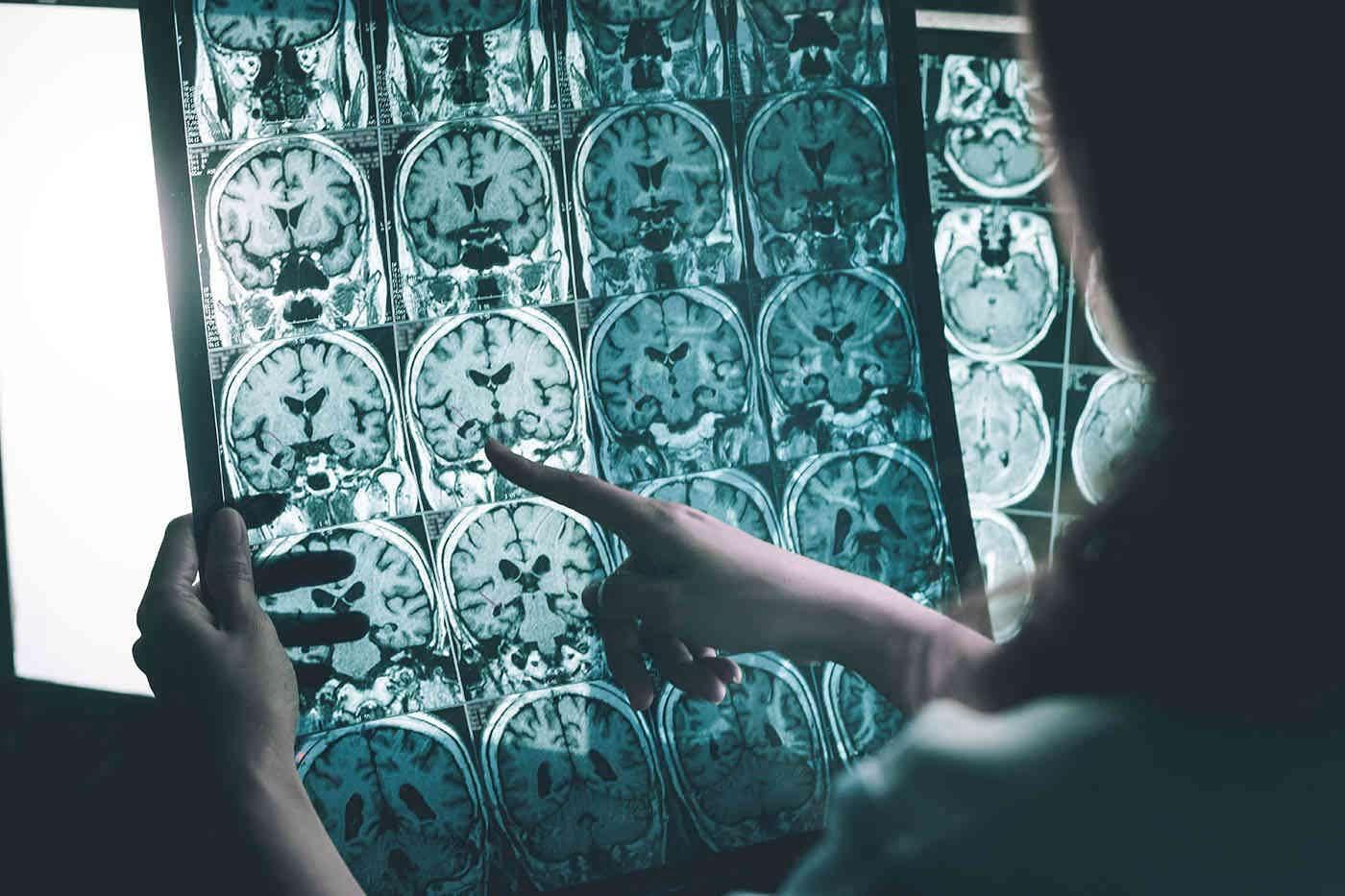 Boala Alzheimer: care sunt cele patru subtipuri?
