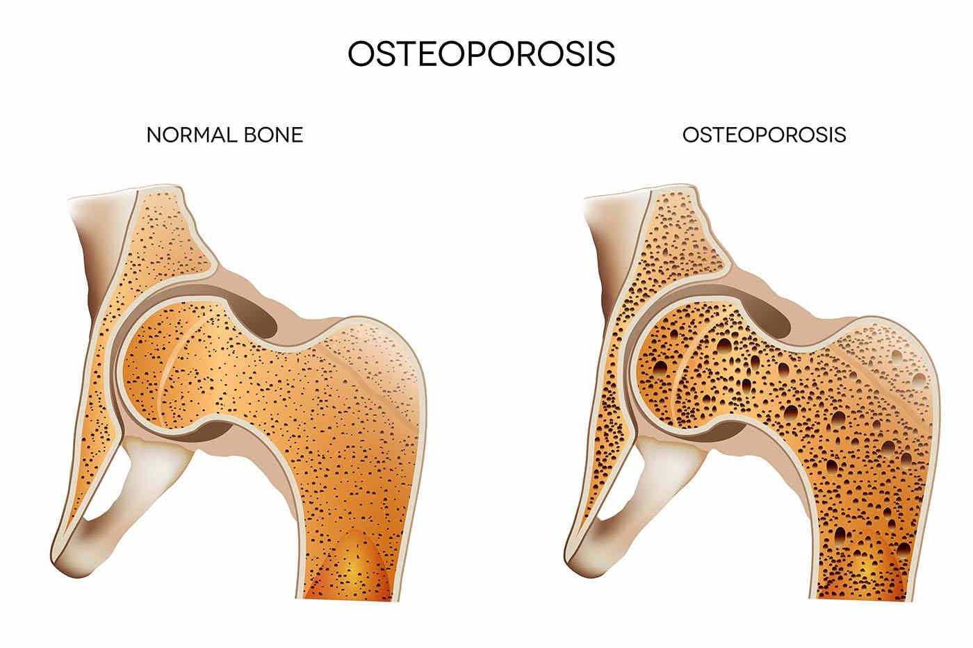 Osteoporoza crește riscul de boli de inimă la femei (studiu)