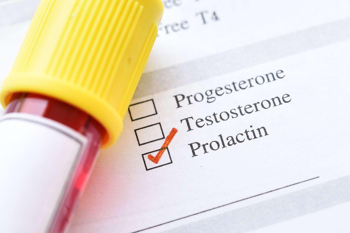 Prolactina și cancerul de sân: cum sunt conectate?