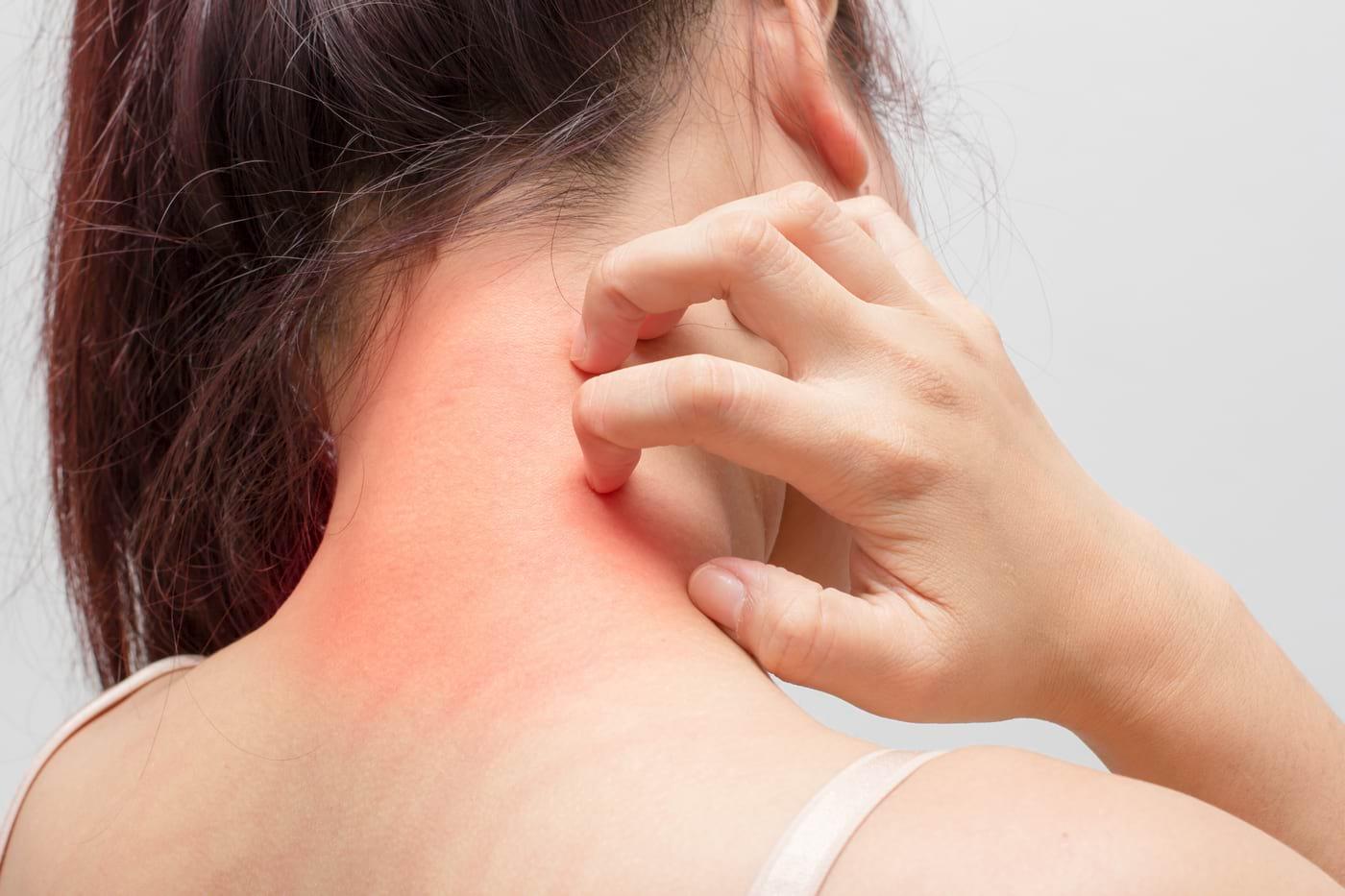 Scurt ghid al celor mai frecvente afecțiuni ale pielii