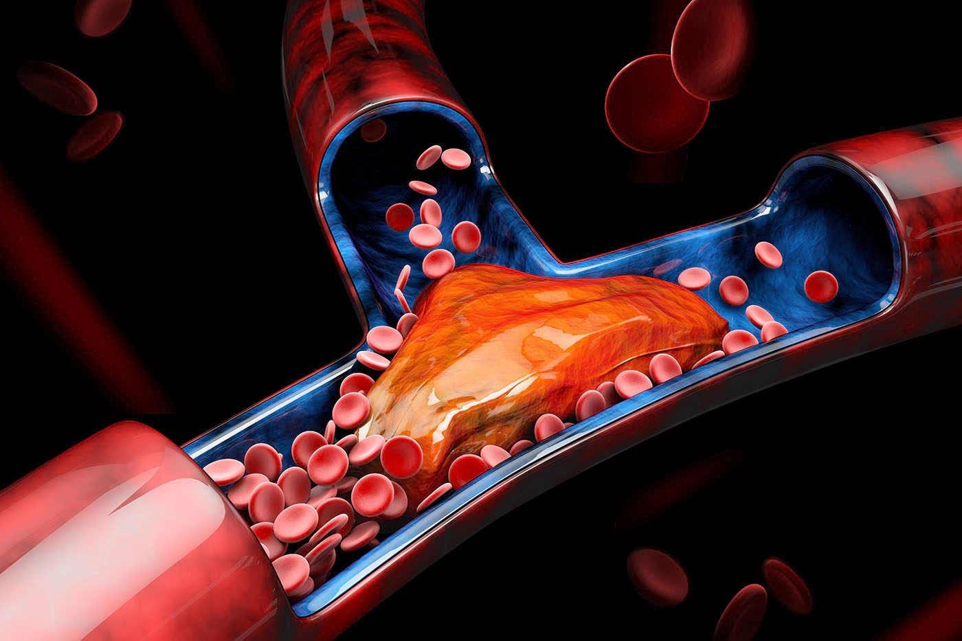 Nou tratament potențial pentru tromboză, descoperit accidental