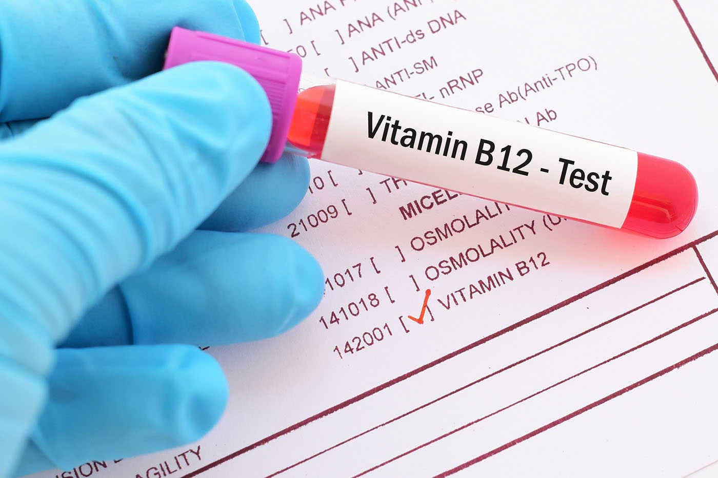 Vitamina B12: semne ale carenței