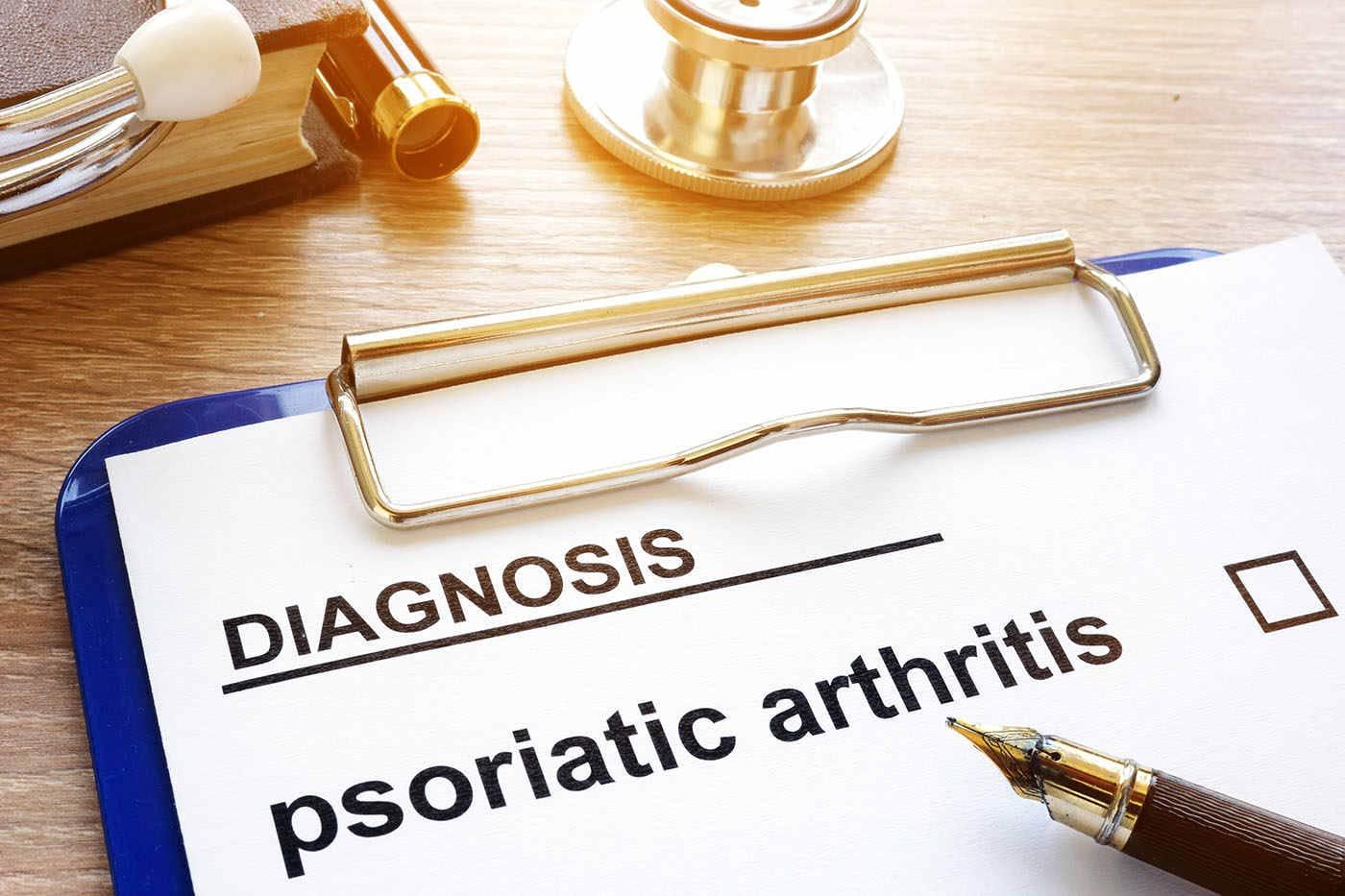 Cum gestionezi episoadele acute de artrită psoriazică?