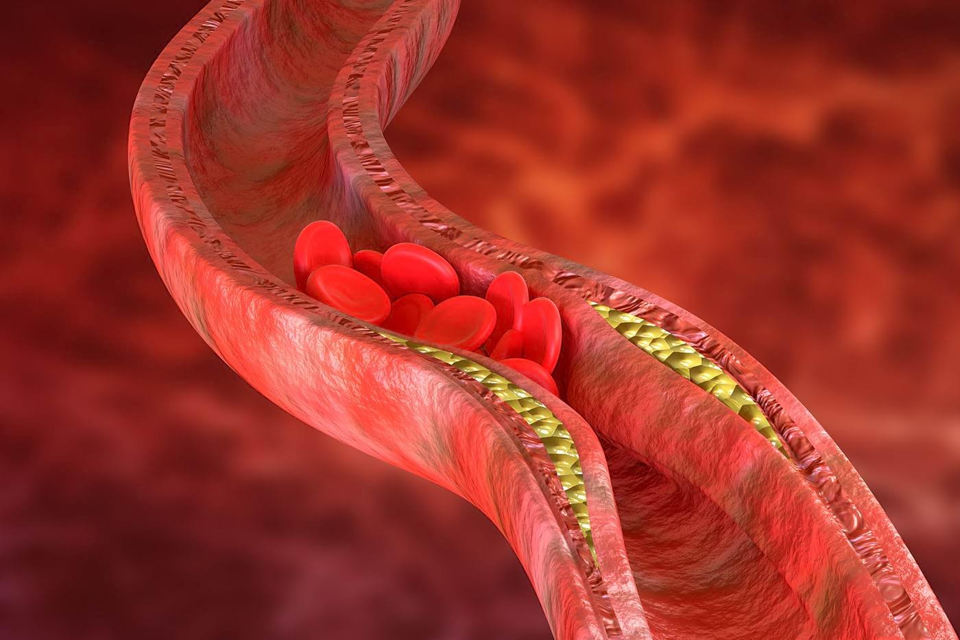 Ateroscleroza, prevenită cu ajutorul unor peptide? [studiu]