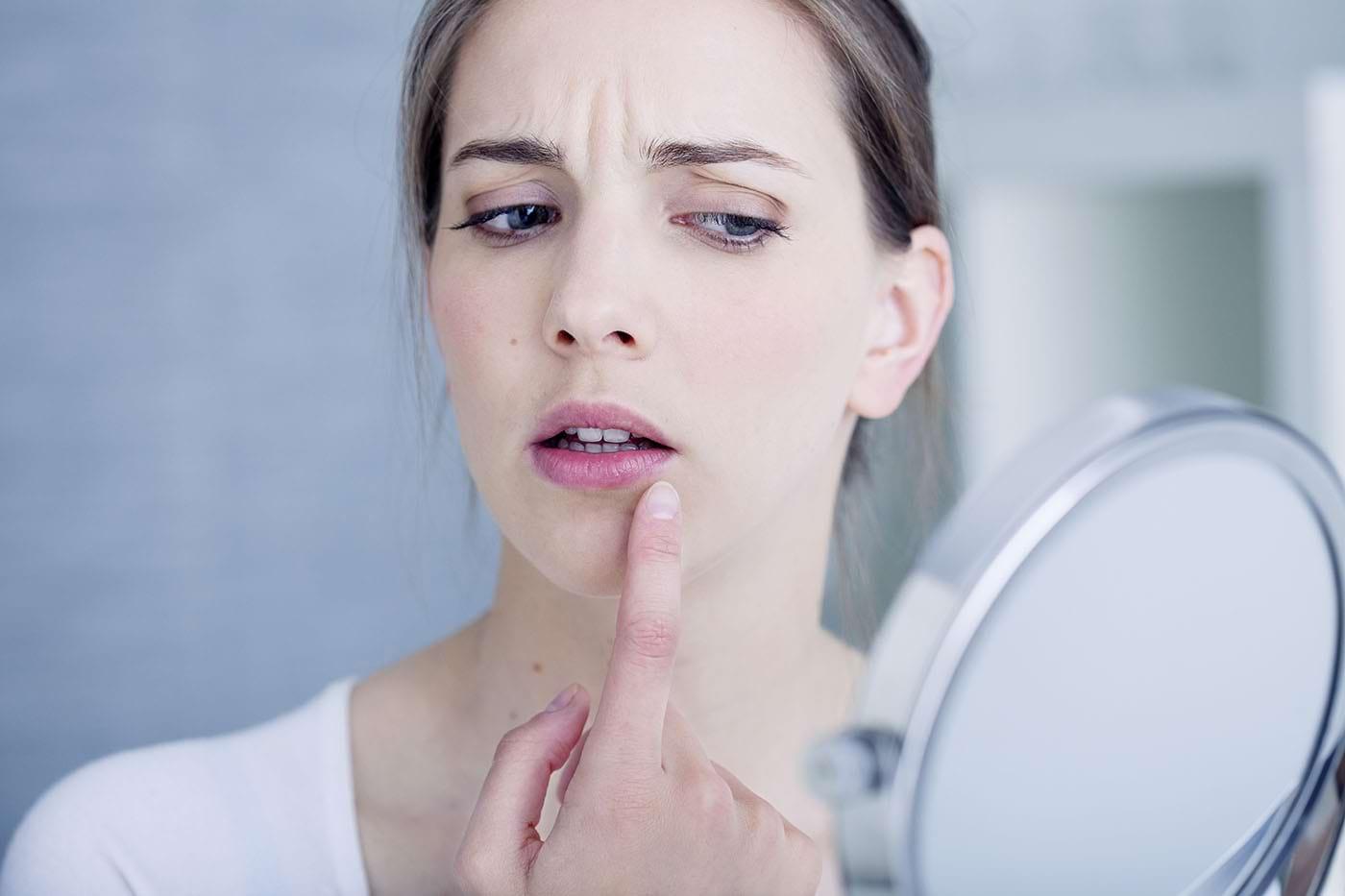 Stresul și boala declanșează episoadele de herpes. Cum are loc procesul?