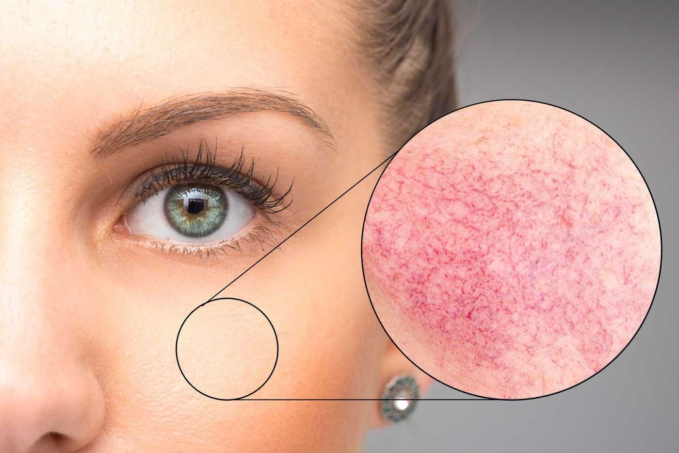Înroșirea pielii: cauze, tratament, prevenire