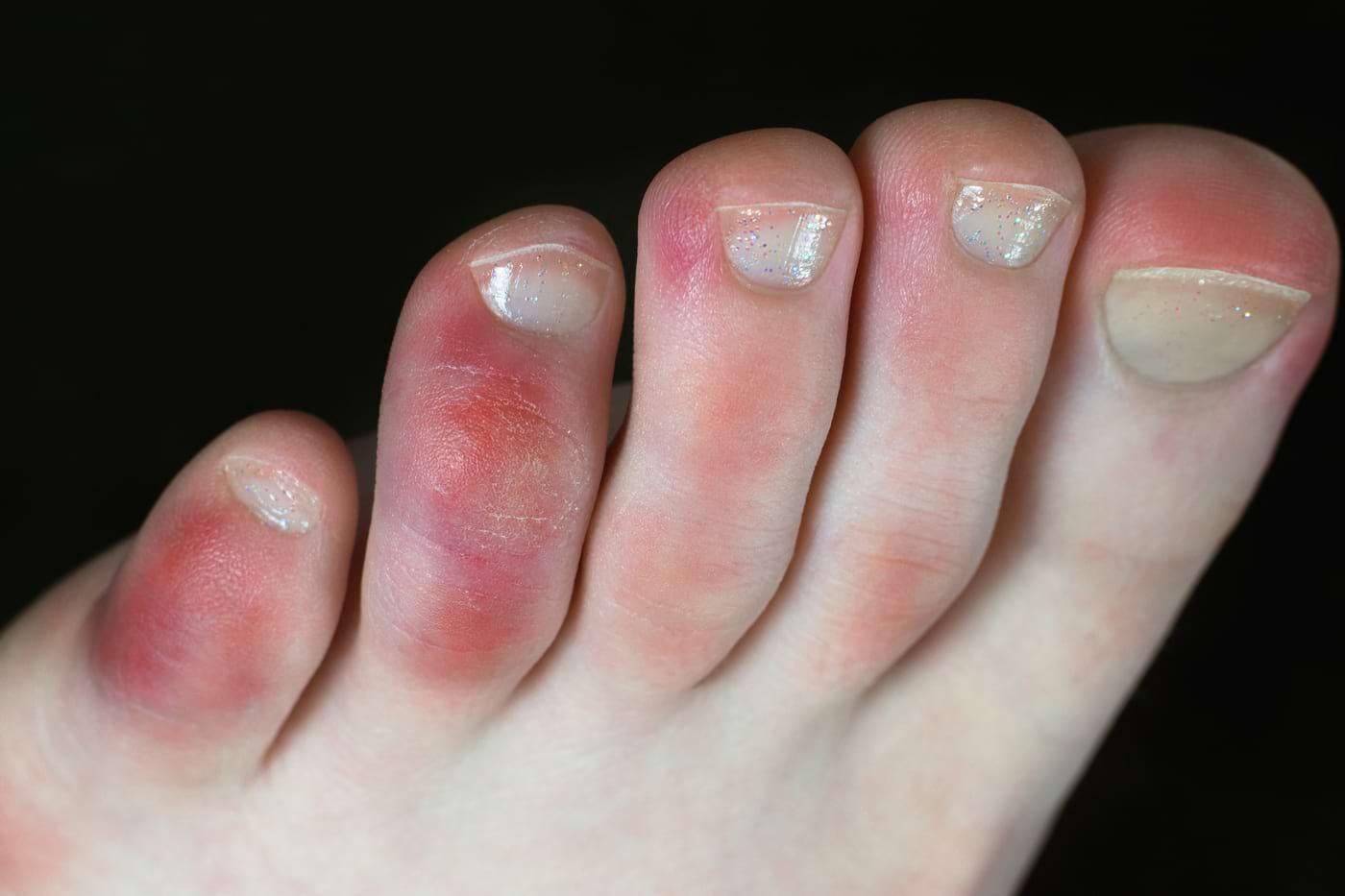 Degetul COVID - ce este și cum poate fi tratat?