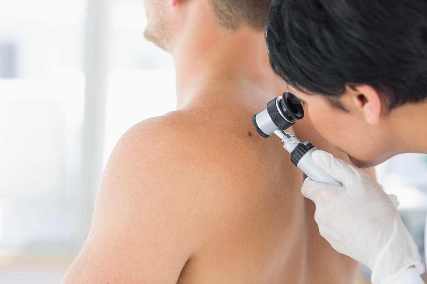 Dermatofibrosarcom protuberans: simptome, cauze, tratament