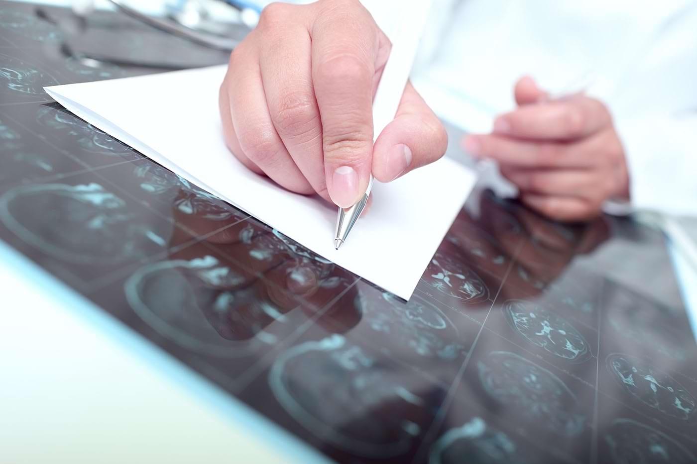Dieta keto ar putea fi de ajutor pacienților cu tumori cerebrale (studiu)