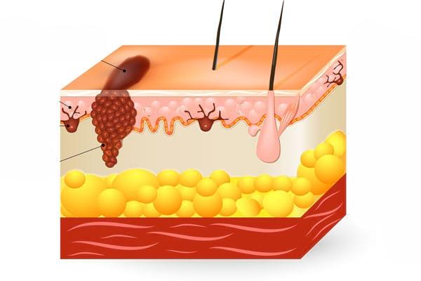 Despre cancerul de piele