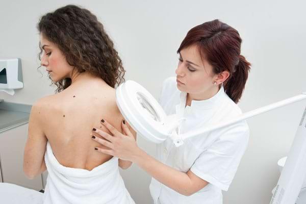 Simptome și diagnostic în cancer de piele